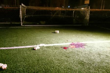 В Московской области подростка придавило футбольными воротами